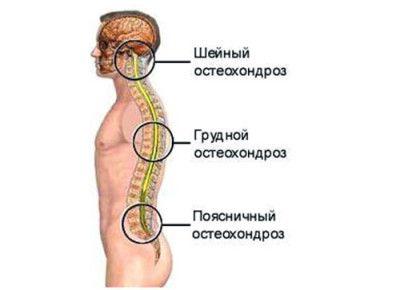 что такое гружной остеоходроз