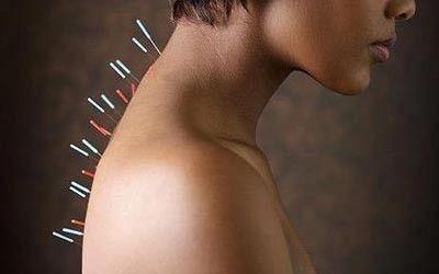 иглотерапия для шейного отдела