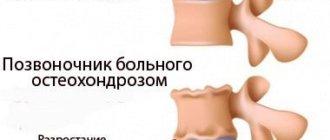 как выглядит остеохондроз шейного отдела позвоночника