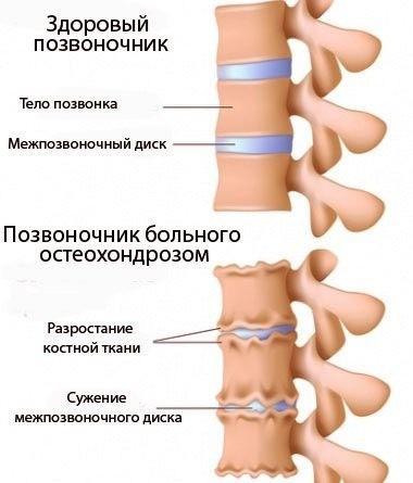головокружение при шейном остеохондрозе массаж помогает