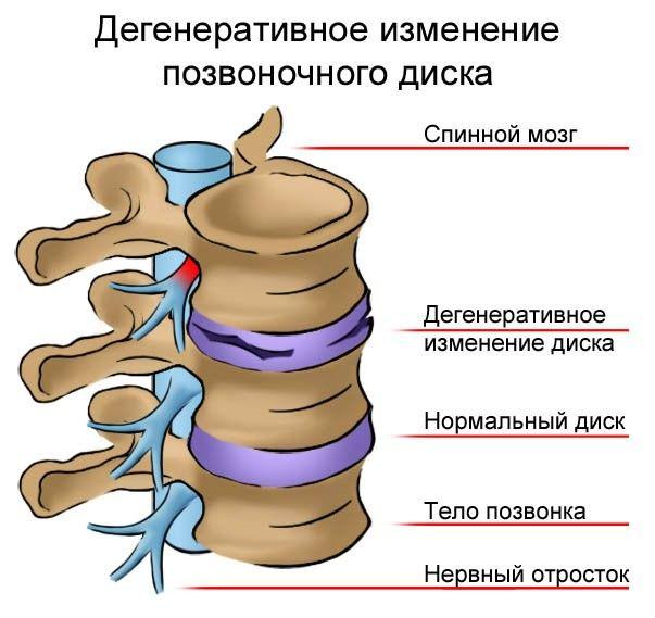 Опоясывающая боль на спине