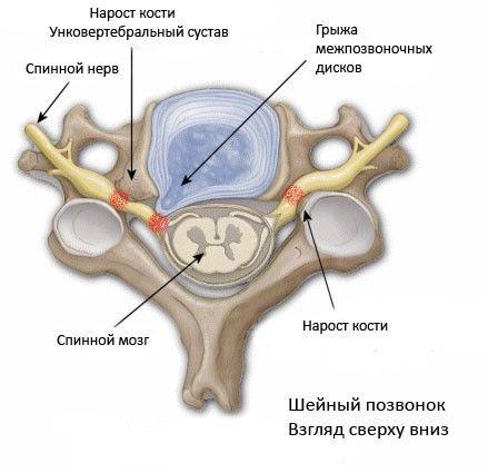 stadii-razvitiya-sheynogo-osteokhondroza3
