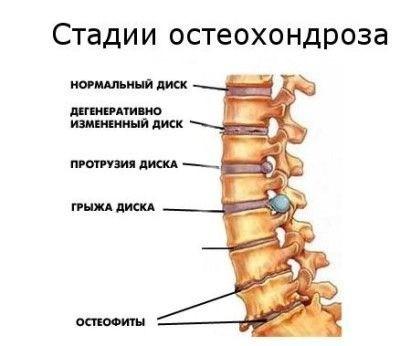 поясничный остеохондроз что делать