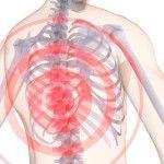 Что делать при остеохондрозе грудного отдела