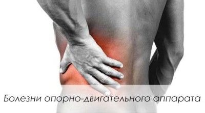 Боли вызванные болезнями опорно-двигательного