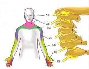 Боли в шее и руке - симптомы вертеброгенной цервикобрахиалгии