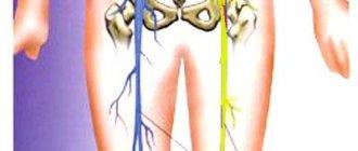 Ишиас - воспаление седалищного нерва
