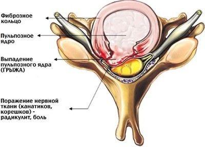 Заболевание позвоночника протрузия лечение