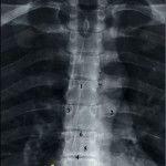 диагностика деформирующего спондилеза грудного отдела