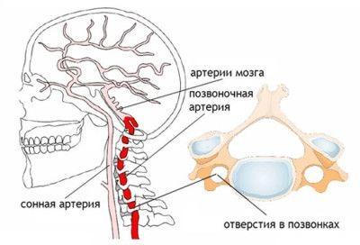 Синдром позвоночной артерии при шейном остеохондрозе