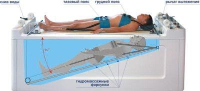 тракционное лечение дорсопатии поясничного отдела