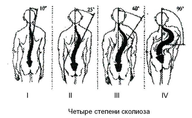 степени s образного сколиоза
