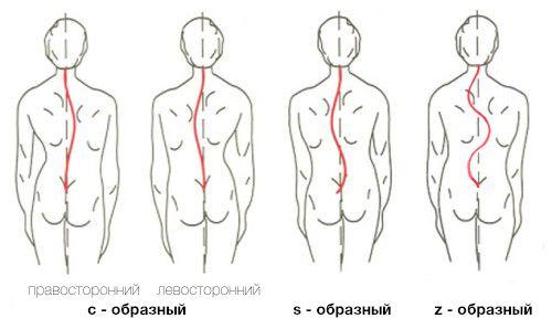 формы-сколиоза