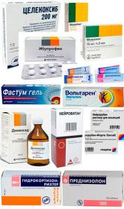 Виды аптечных препаратов для лечения лордоза
