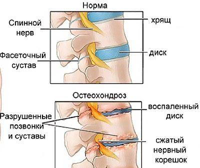 Спина Доктор