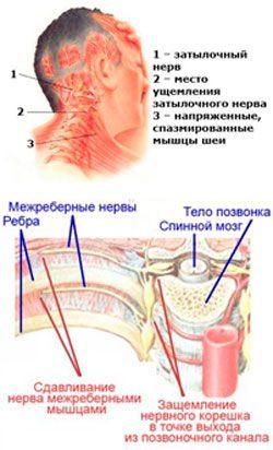 Виды невралгии: рефлекторная и корешковая