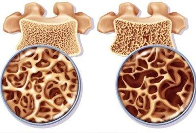 2029945381Osteoporosis (2)