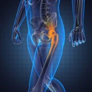 Изображение - Лечение остеопороза тазобедренного сустава у женщин Tazobedrennogo-Sustava-300x300