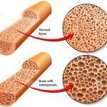 Как выглядят кости с остеопорозом и без него