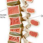 Нормальная и ненормальная пористость кости