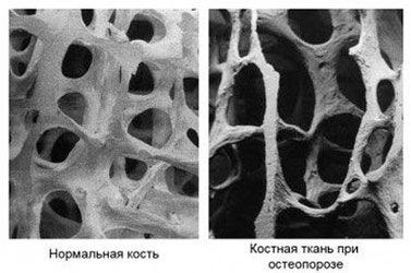 Нормальная плотность кости и остеопороз на рентгеновском снимке