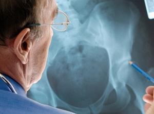 Остеопороз-тазобедренного-сустава-лечение