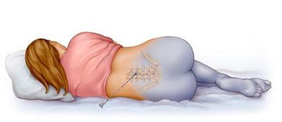 Действие эпидуральной анестезии на организм человека
