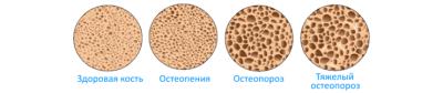 osteopeniya-i-osteoporoz-740x156