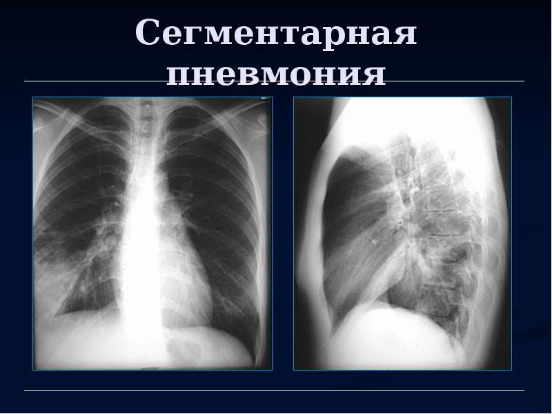 Пневмония сегментарная