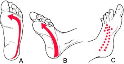 Проведение диагностики на симптом Бабинского