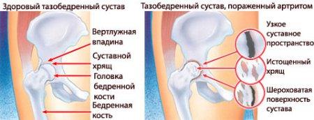 Здоровый и поражённый артритом тазобедренный сустав