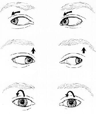Нистагм. Непроизвольное движение глаз.