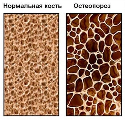 Нормальная плотность кости и остеопороз