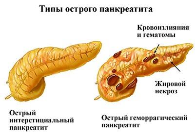 Два типа острого панкреатита