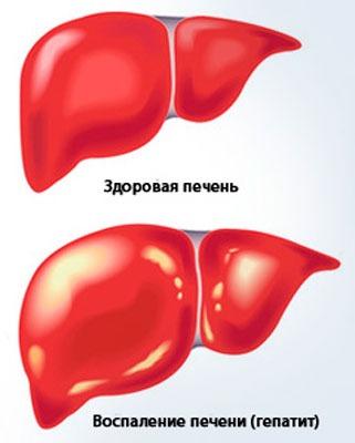 Печень здоровая и больная гепатитом