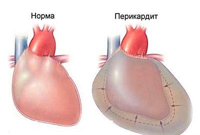 Сердце в норме и при заболевании перикардит