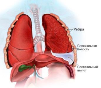 Плеврит лёгкого