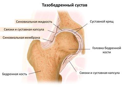 Причины и лечение боли в бедре