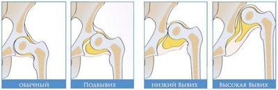 Тазобедренный сустав в нормальном и вывихнутом состоянии