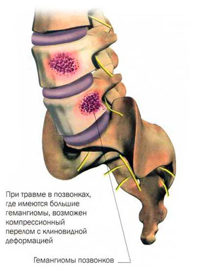 Можно ли делать массаж спины при гемангиоме