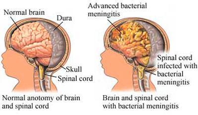 Нормальное и воспалённое (менингит) состояние головного мозга
