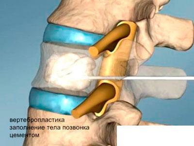Вертебропластика- проведение процедуры