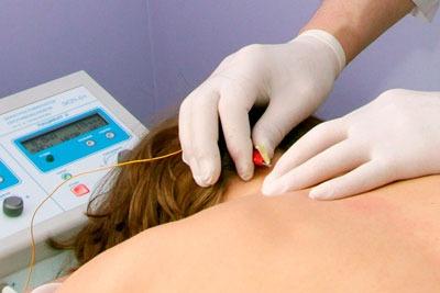 Проведение внутритканевой электростимуляции при унковертебральном артрозе шейного отдела позвоночника