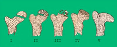 5 стадий болезни Пертеса