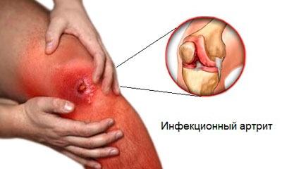 Артрит инфекционный