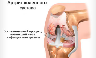 Схема артрита коленного сустава, возникшего из-за инфекции или травмы