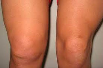 Артрит припухлость колена