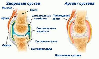 Артрит сравнение больного и здорового сустава