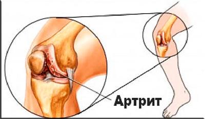Артрит в разрезе коленного сустава