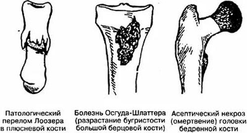 Болезнь Осгуда Шлаттера: большая берцовая кость